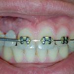 Diş Hekimliği Fakültesi Hastanesi'nde Bilgisayar Destekli Tasarım ve Üretim (CAD-CAM) ile Aynı Gün Protez Tedavisi