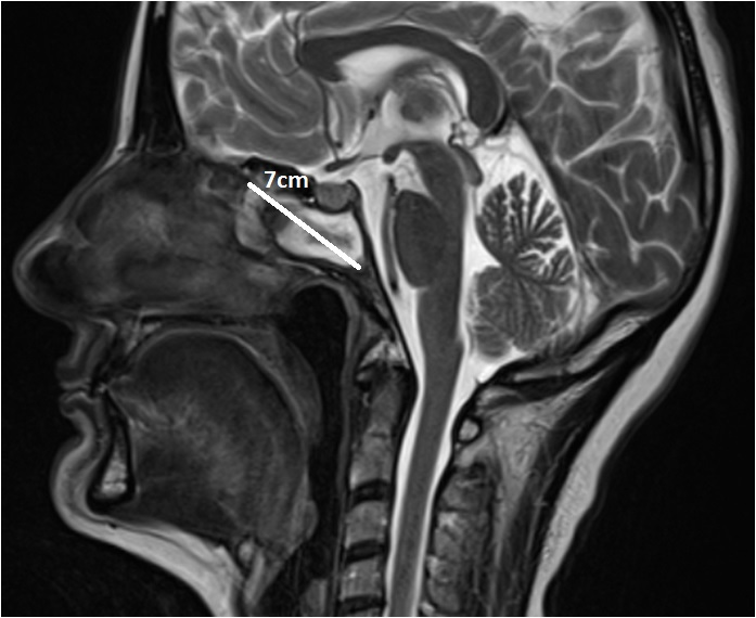 Tumor with 7 cm diameter between Nose and Brain was removed by using Intraoperative Navigation System